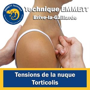 Technique EMMETT tensions de la nuque torticolis