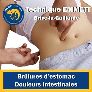 Technique EMMETT brûlures d'estomac douleurs intestinales